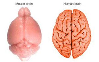 가난이 아이의 두뇌에 영향을 미친다는 연구 발표