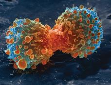 새 폐암 치료법이 주목을 받고 있다.