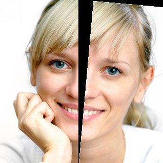 오랫동안 실명한 여성이 다른 인격이 나타나면 앞을 보게 된다.