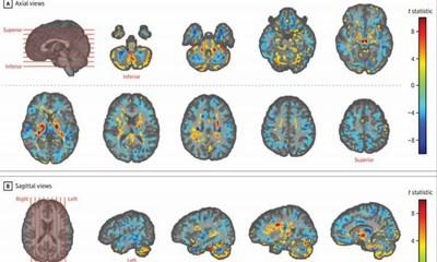 2016년 11월에 하바나에서 음파 공격을 당한 미국 대사관 직원들의 뇌 변화가 확인되다