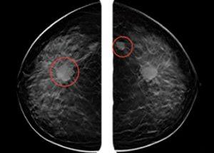 유방암 진단에서 인간을 뛰어넘은 인공지능
